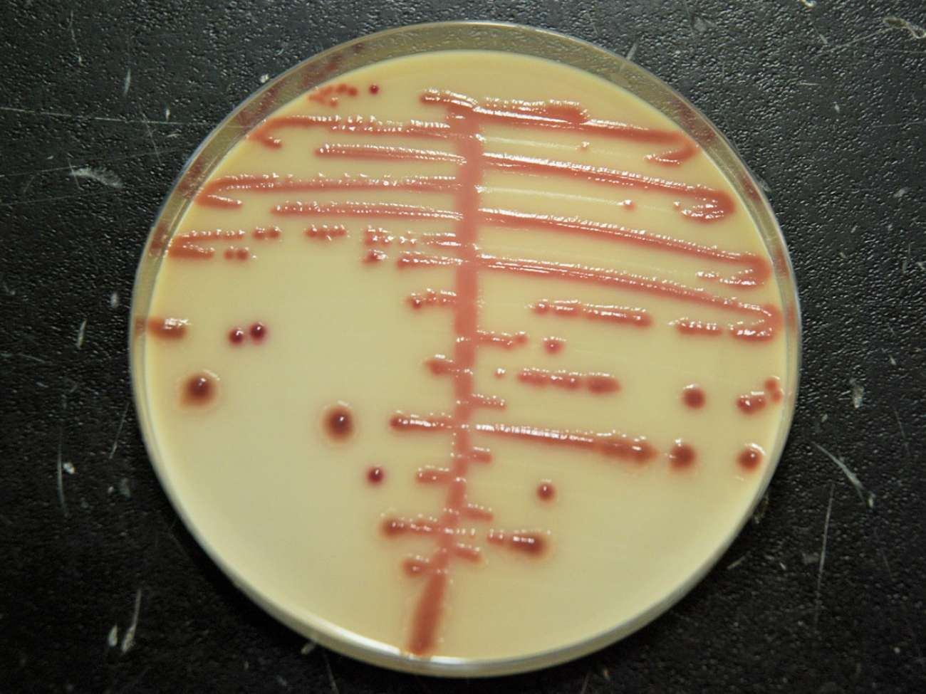 Manual streaking of plates to grow pathogens took time, was less consistent, and could streak less of the plate.